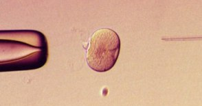 http://ma.grossesse.cowblog.fr/images/artificialinsemination1.jpg